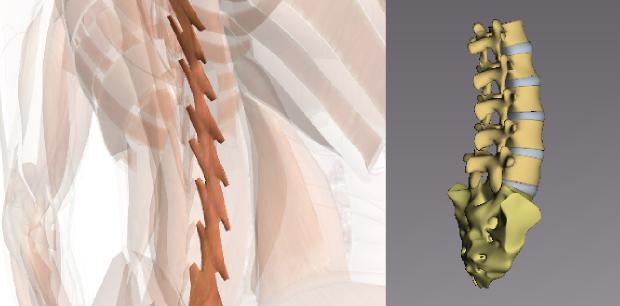 ぎっくり腰・急性腰痛の図解