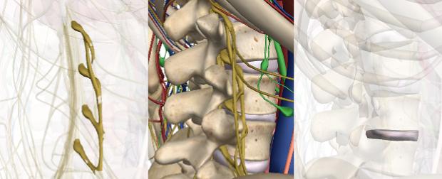 椎間板ヘルニアの図解