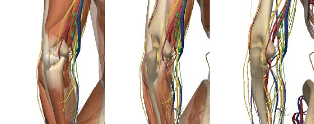 スポーツによるヒジの痛みの図解