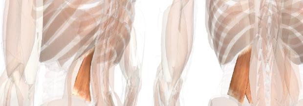 腰痛・慢性腰痛の図解