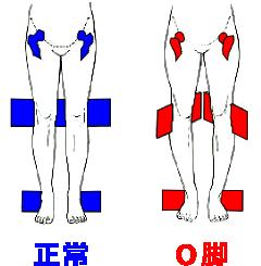 O脚の説明